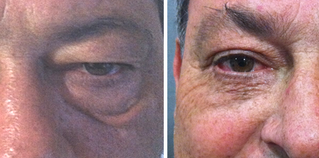 Blefaroplastia inferior para las bolsas de los ojos. blepharoplasty for the reduction of the bags under the eyes. Before and after.