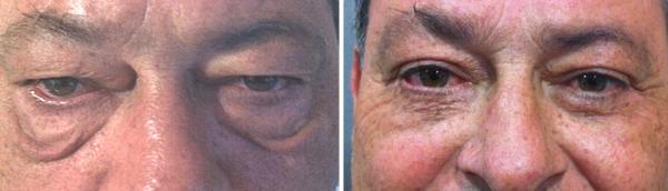 Blefaroplastia inferior para las bolsas de los ojos