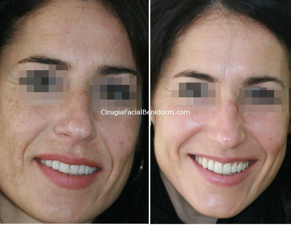 Peeling medio TCA antes y después. medium peeling before and after in Spain