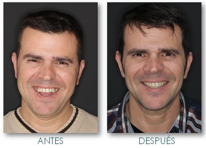 Cirugía ortognática como solución a mandíbula con problema de mordida abierta. Orthognathic surgery as a solution to the mandible with open bite problem