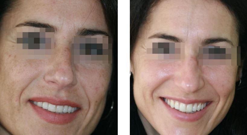 Peeling medio TCA antes y después