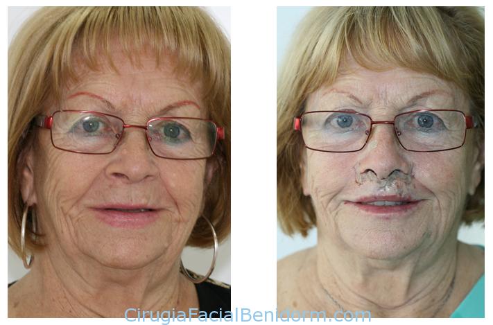Lifting de labio antes y después. Testimonios