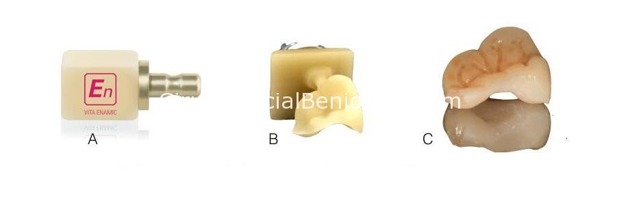 Incrustaciones para solucionar dientes rotos. Enamic