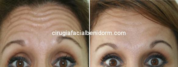 botox y mesobotox before and after Botox antes y después en Alicante