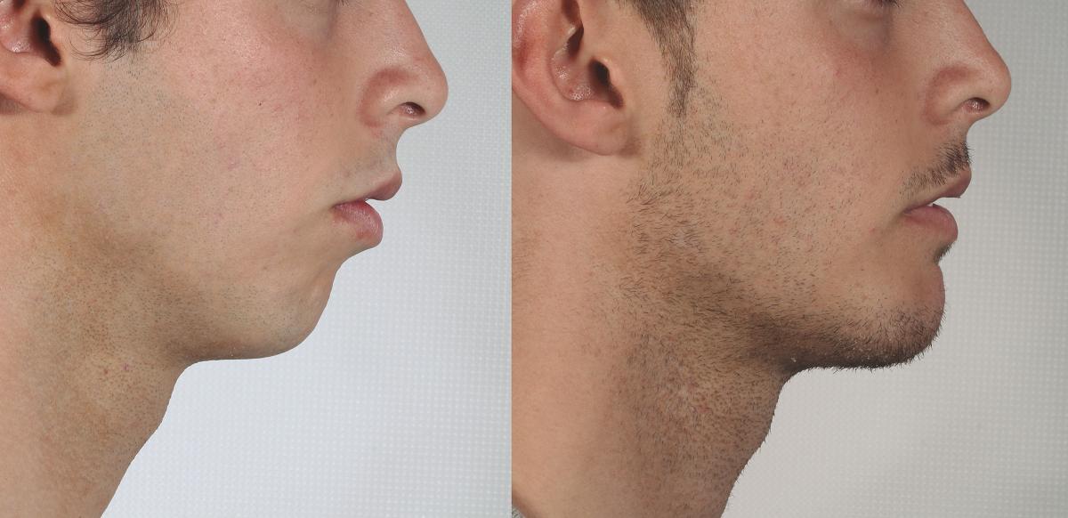 Mentoplastia o cirugía de mentón hombre antes y después