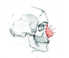 Push Down: toda la pirámide nasal intacta se empuja hacia abajo y se recoloca hasta el nivel perfecto