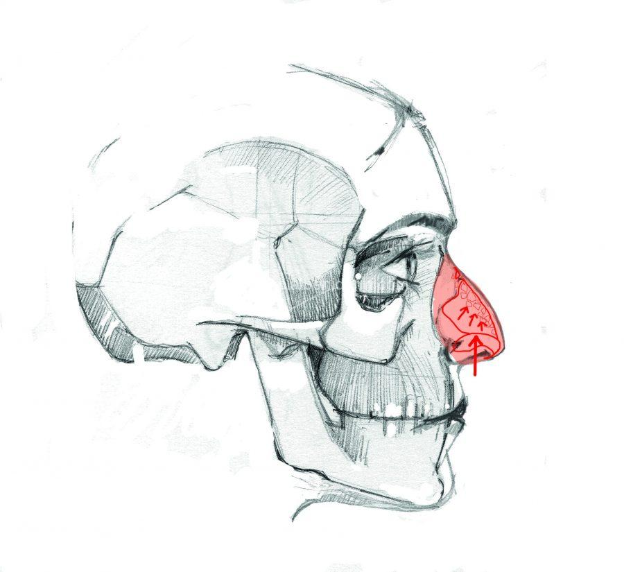 Rinoplastia tradicional rompe el hueso de la giba o caballete