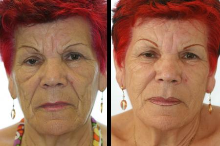Lipofiling relleno con la propia grasa antes y después