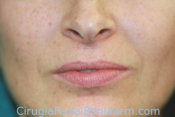 Aumento labios con ácido hialurónico antes