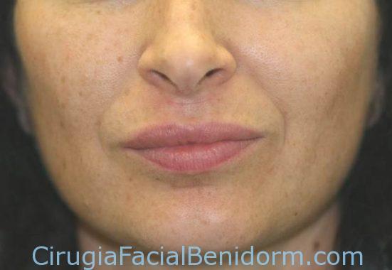 Aumento labios con ácido hialurónico después