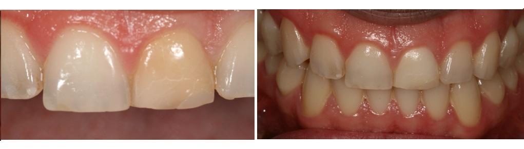 Blanqueamiento de los dientes - Tooth whitening