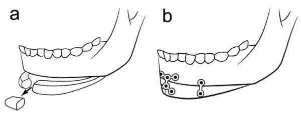 Feminización facial suavizar la mandíbula