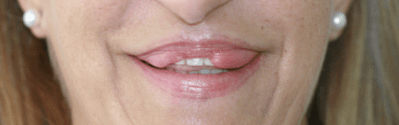 Cirugía de labios, queiloplastia correctora - Lip surgery, corrective cheiloplasty
