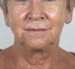 Lifting de labio antes y después