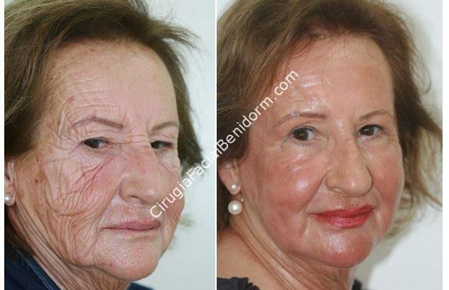 Peeling Fenol - Cirugía estética antes y después