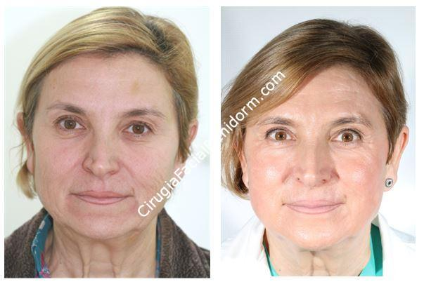 Peeling fenol para el rejuvenecimiento de la cara - Phenol Peeling for Rejuvenation of the Face