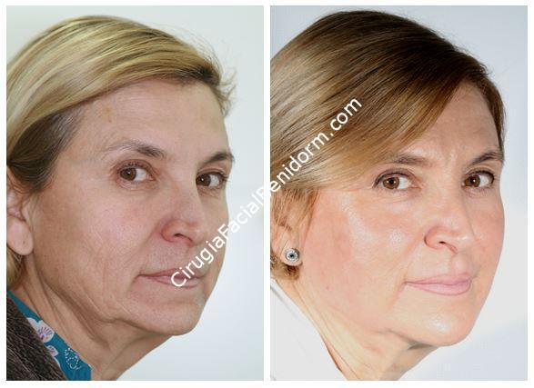 Peeling fenol para el rejuvenecimiento de la cara - Phenol Peeling for Rejuvenation of the Face