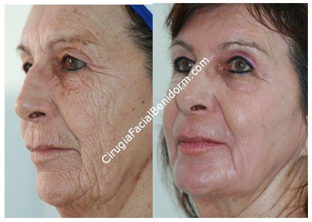 Deep phenol peeling. Before and after - Peeling profundo fenol. Antes y después