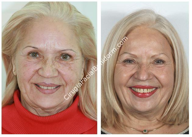 Peeling fenol, caso real, antes y después - phenol peeling before and after