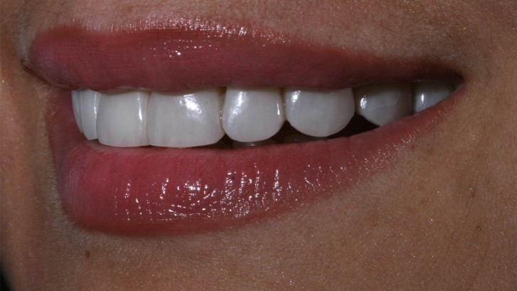 dental platinum veneers without sculpture in Benidorm, Alicante