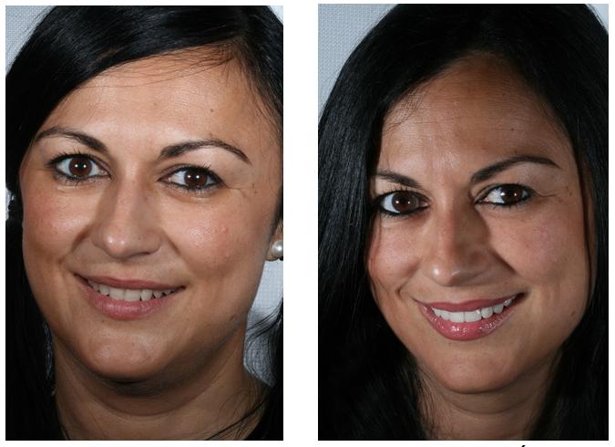 Carillas de platino antes y después 1