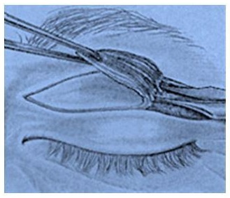 Blefaroplastia-o-cirugía-de-párpados en Benidorm, Alicante