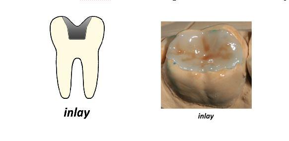 INLAY. Cubre la cara oclusal del diente, englobada dentro de las cúspides. INCRUSTACIONES