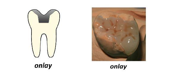 ONLAY. Cubre la cara oclusal del diente y parcialmente sus cúspides.