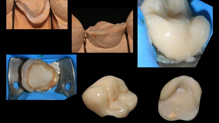 Incrustaciones dentales para solucionar muela rota, caso real 2
