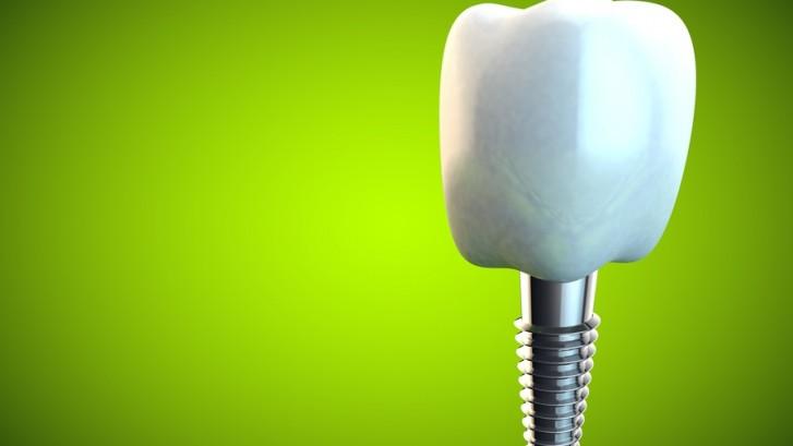 """""""Todo lo que un paciente debe saber sobre la implantología dental. Procedimientos y precio justo""""."""