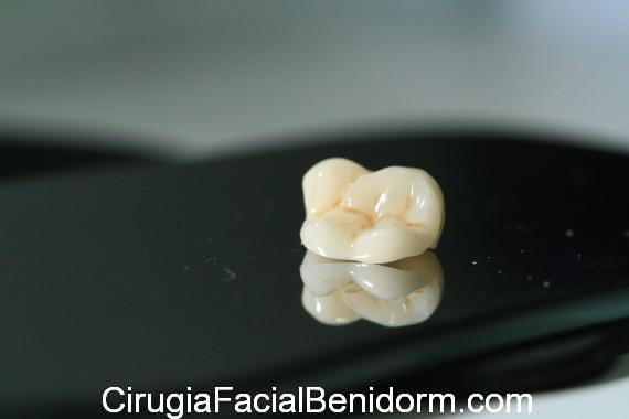 Prótesis dentales en Alicante Materiales_Enamic