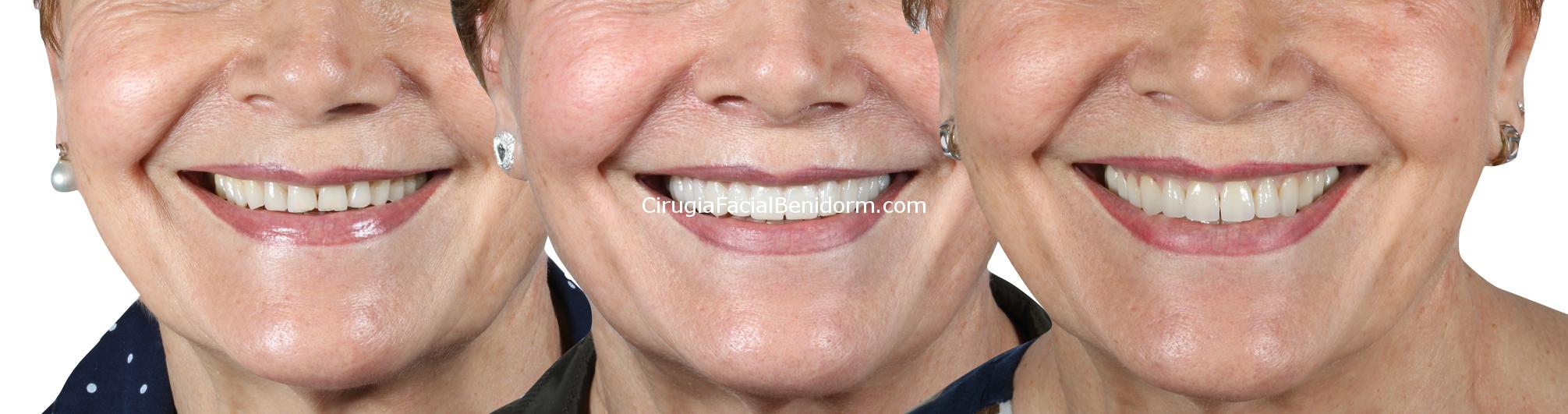 Estética Dental dientes desgastados