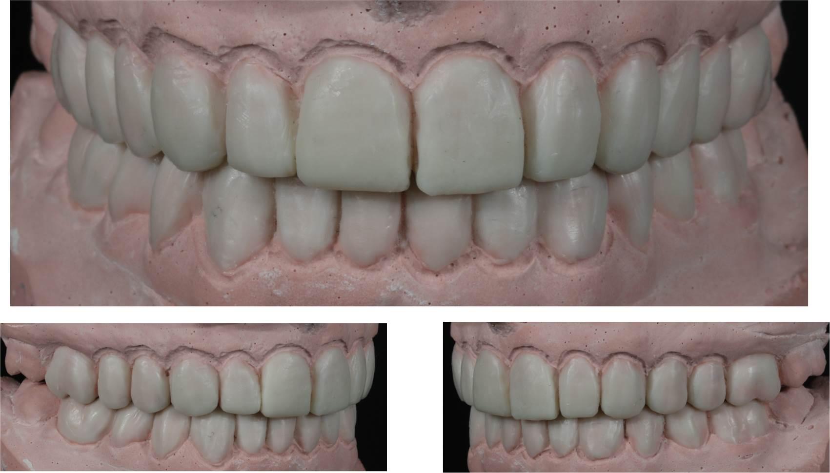 Mock Up o simulación de cómo quedará en la boca real. estética dental 2