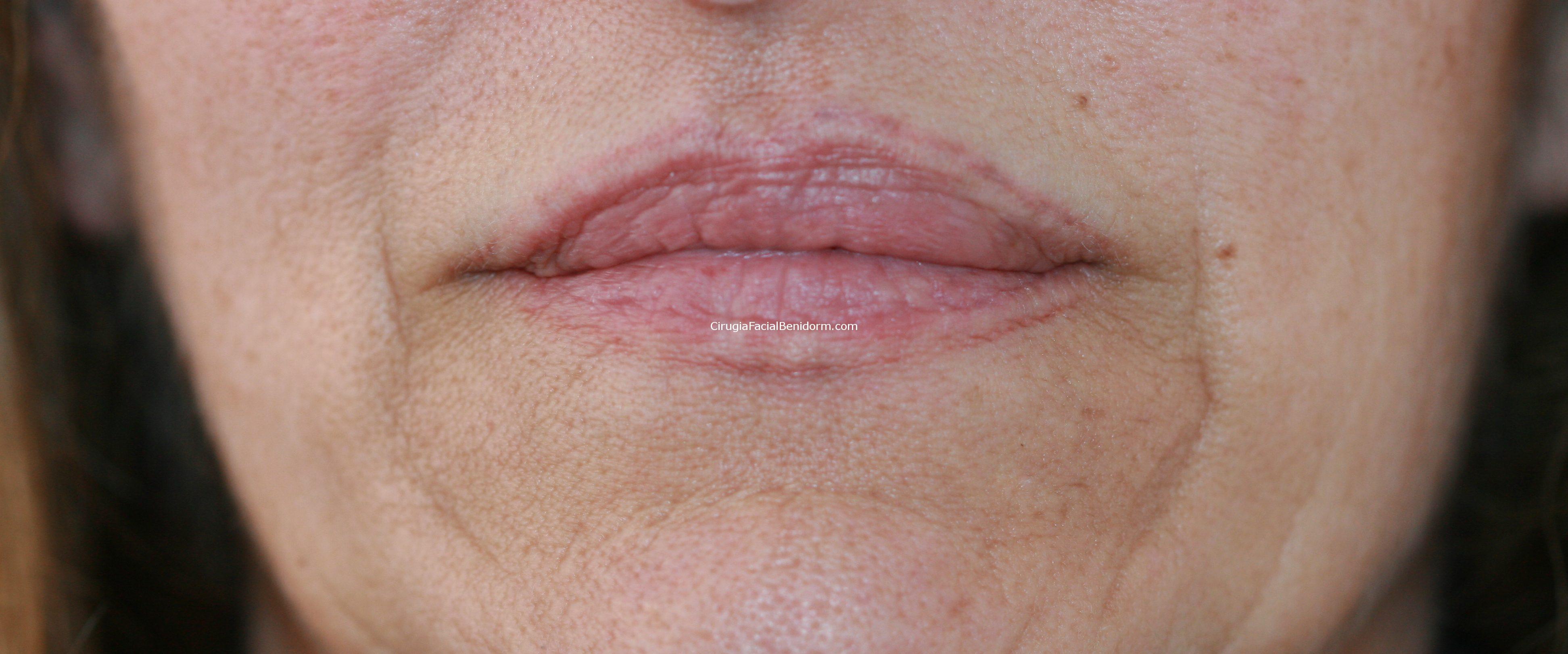 Reducción de labios infiltrados con silicona - antes y después