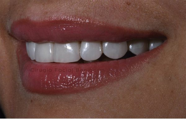 Carillas estéticas dental Benidorm. Veneers in Spain