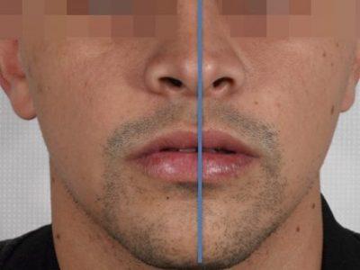 cirugía maxilofacial para rectificar mandíbula torcida en Benidorm, Alicante
