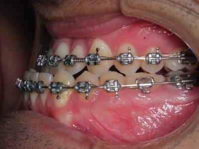 Cirugía maxilofacial para retrasar la mandíbula, Benidorm, España