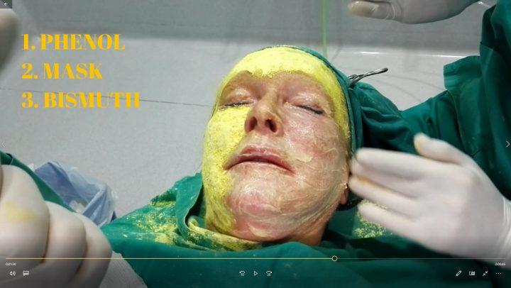 Peeling facial con fenol. Rejuvenecimiento arrugas de la cara