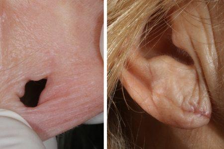 lobuloplastia o cirugía del lóbulo de la oreja