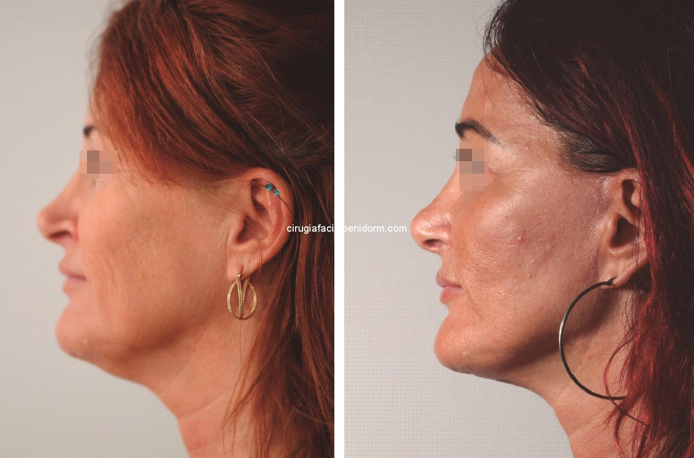 Lifting facial antes y después. Facial lifting before and after