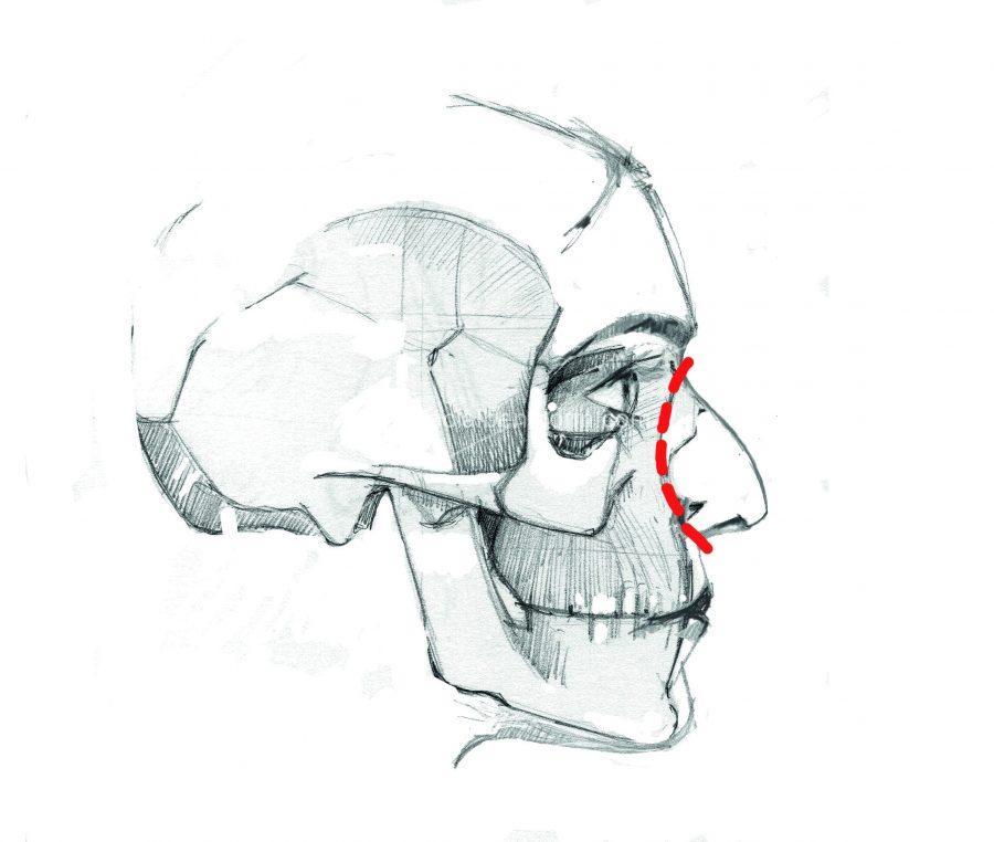 Rinoplastia de preservación o conservadora: cortamos limpiamente la base de la nariz en lugar de destruir los huesos del caballete
