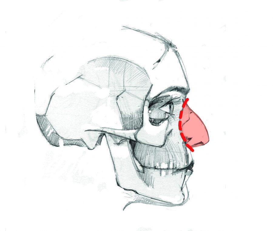 En la rinoplastia conservadora el bloque de la nariz queda intacto