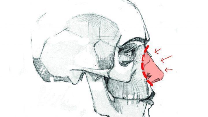 Rinoplastia de preservación. Push Down: Bajamos todo el bloque de la nariz lo necesario hasta el nivel en el que la giba o caballete se queda a la altura deseada, conservando TODA la anatomía del techo.