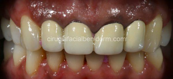 Aspecto inicial de la paciente: Existe una pigmentación de la encía en zona antero-superior. Puente metal cerámica sobre las piezas 12-11-21-22 sobre contorneadas.