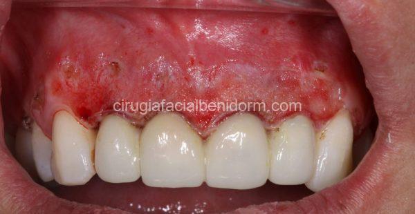 Colocación de provisionales y Realización de peeling o abrasión gingival para mejorar la salud y el color de la encía
