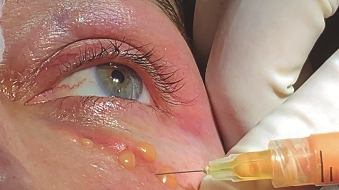 Ojeras: inyección de grasa enriquecida