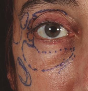 Bolsas y ojeras: Nanofat. Marcado